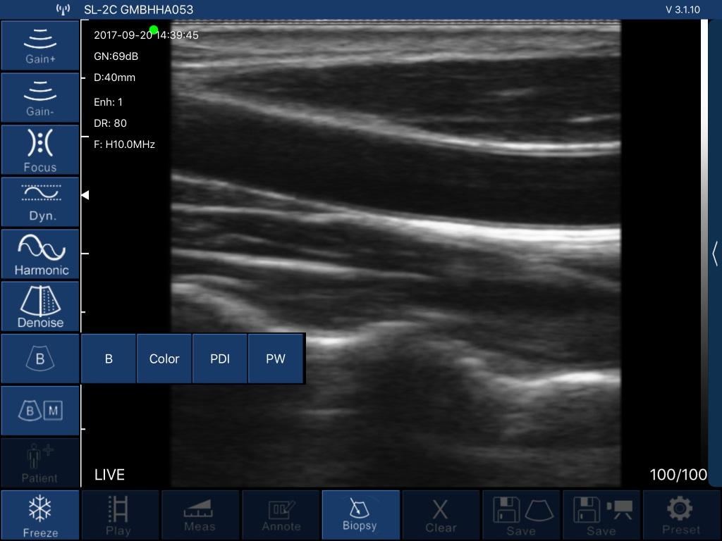 Ultrasound Image Mymides