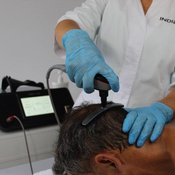 Indiba Deepcare hairwave 4