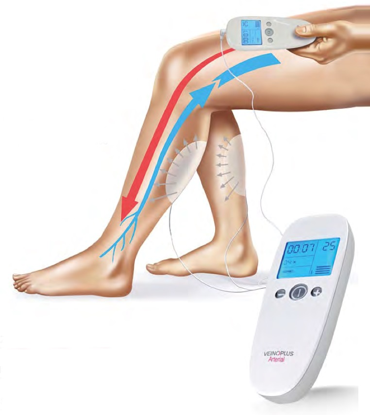PAD device and arteries