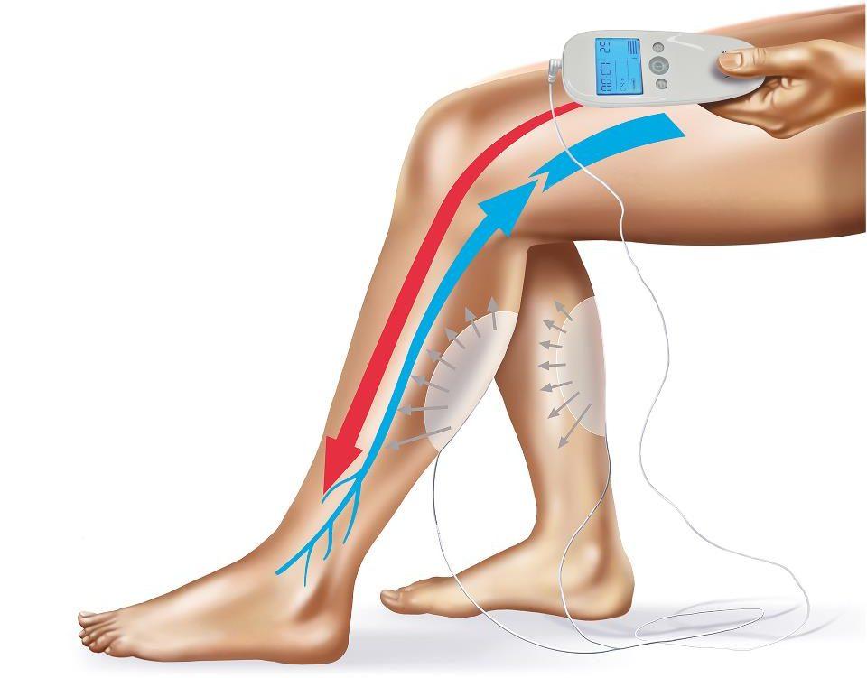 leg veins and arteries e1608148747493